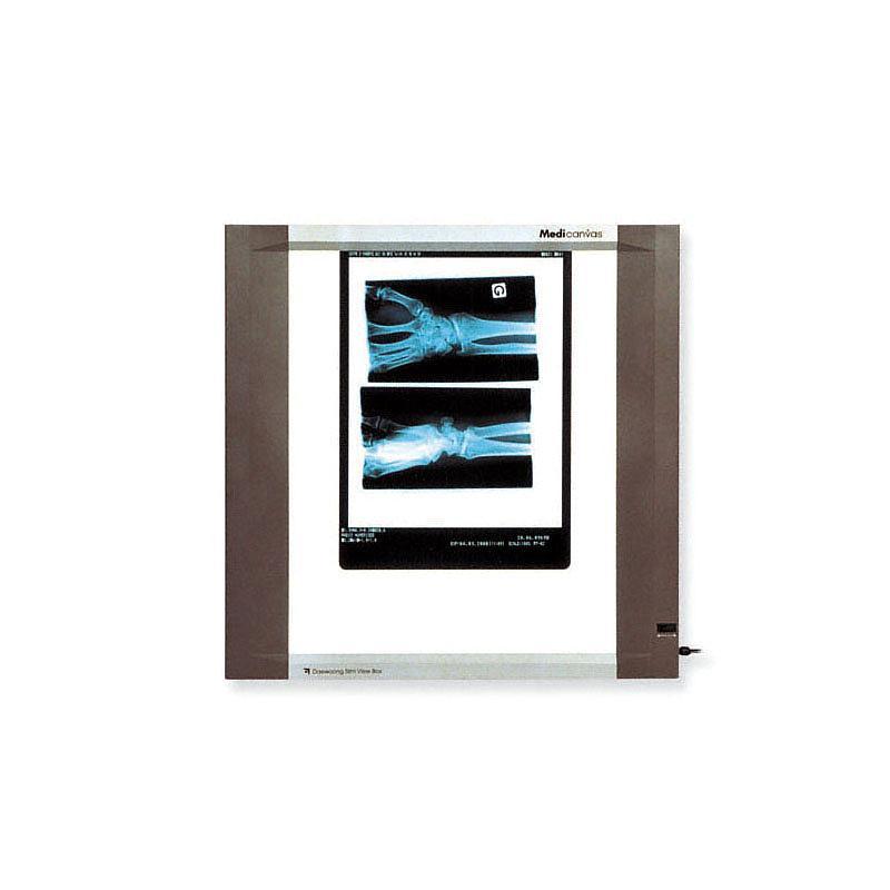 Négatoscope : négatoscope extra-plat - 1 plage - Holtex