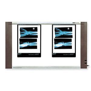Négatoscope : négatoscope extra-plat - 2 plages - Holtex