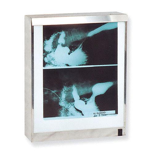 Négatoscope : négatoscope standard - 1 plage - Holtex