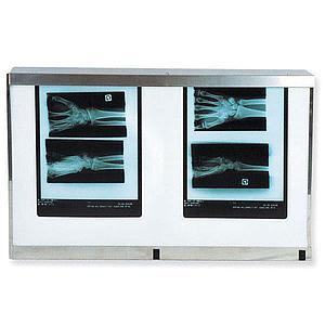 Négatoscope : négatoscope standard - 2 plages - Holtex